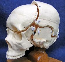 tensegrity skull model